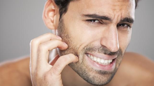 itchy-beard-getty-e1438277755494
