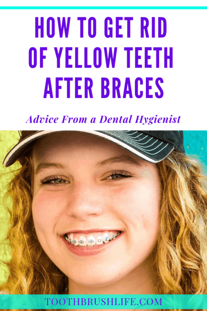 pinterest image for how to fix yellow teeth after braces