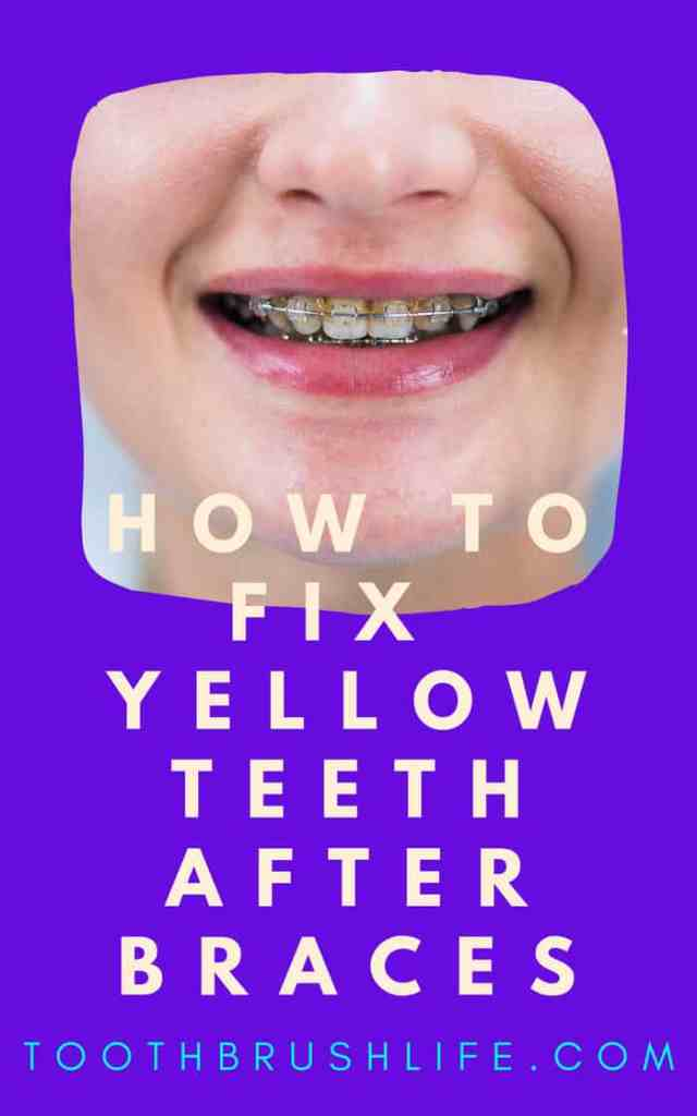 yellow teeth after braces