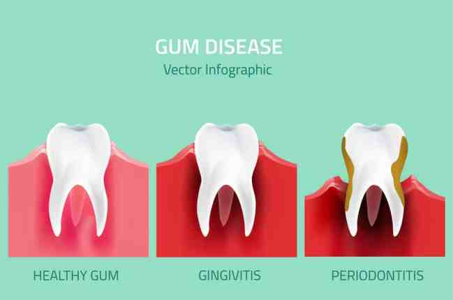 stages of gum disease picture