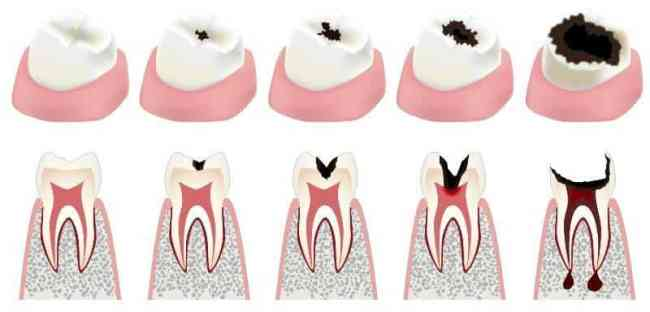 Tooth decay stages cavity stages
