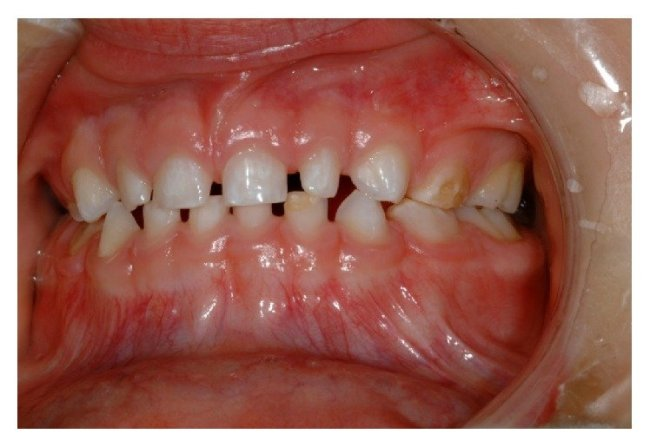 Teeth have white spots