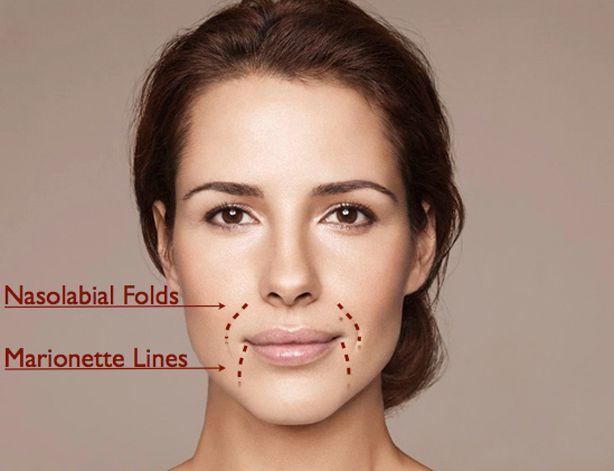 Dermal Filler Common treatment areas