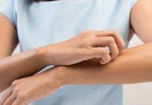Cara menyembuhkan alergi