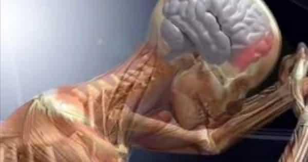 Hipertensao intracraniana uma das piores dores do ser humano