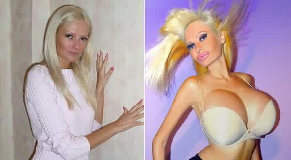 Victoria Wild entre as cirurgias plasticas mais bizarras do mundo