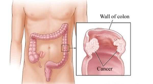 cancer de colon entre os tipos de cancer mais agressivos