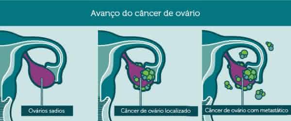 cancer de ovario entre os tipos de cancer mais agressivos
