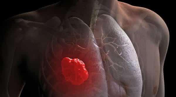 cancer de pulmao entre os tipos de cancer mais agressivos