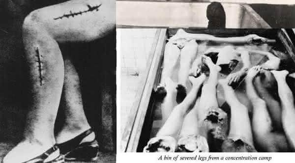 enxerto osseo entre os chocantes experimentos nazistas