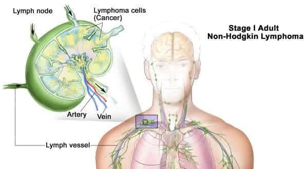 linfoma nao hodgkin entre os tipos de cancer mais agressivos