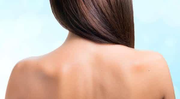corpo entre os mitos e equivocos relacionado a acne