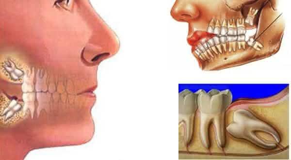 dentes sisos entre as partes do corpo humano que nao servem para nada