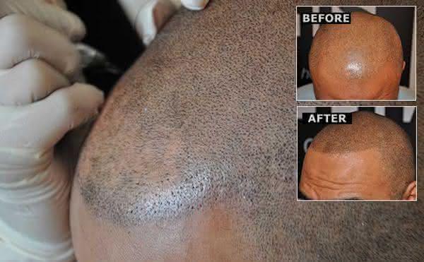 tatuagem no cabelo entre as novas maneiras de fazer tatuagem