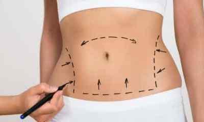 Abdominoplastia entre as cirurgias plasticas mais caras do mundo