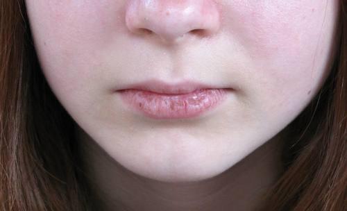 remedios caseros para los labios agrietados
