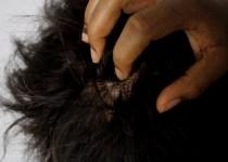 remedios caseros para picazon en el cuero cabelludo