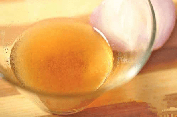 jugo de cebolla y miel tratamiento pérdida cabello4