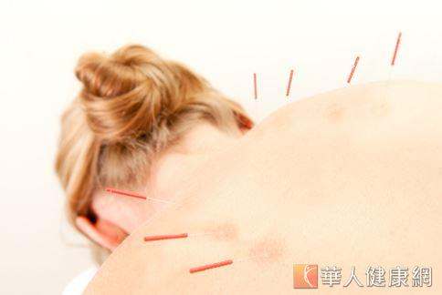 消除痠痛「針」有效?慎防氣胸危機   華人健康網