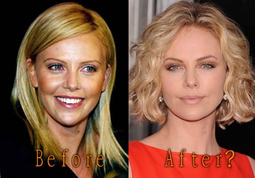 Charlize Theron Plastic Surgery TopCelebritySurgery
