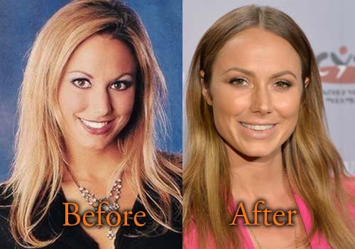 Stacy Keibler Plastic Surgery Before And After Nose Boob
