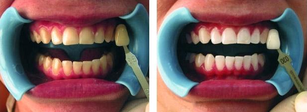 Холодное лед отбеливание зубов