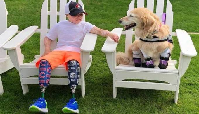 Boy Amputee Meets Dog Amputee and It's Love