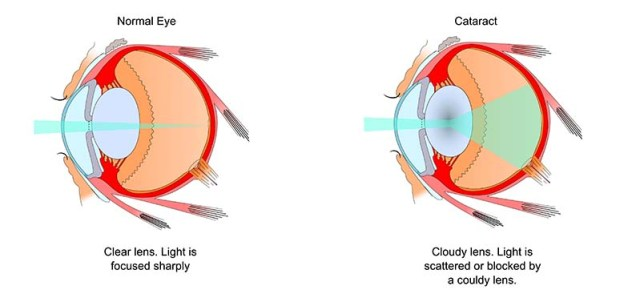 What are cataracts in dogs