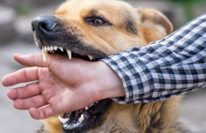 how to treat a dog bite