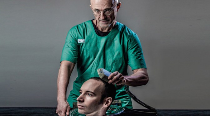 This Doctor Plans To Play With Human Head, The First Human Head Transplant