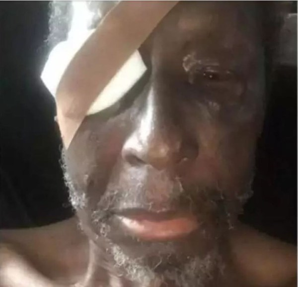 New photo shows veteran actor, Sadiq Daba is about to loose his eye
