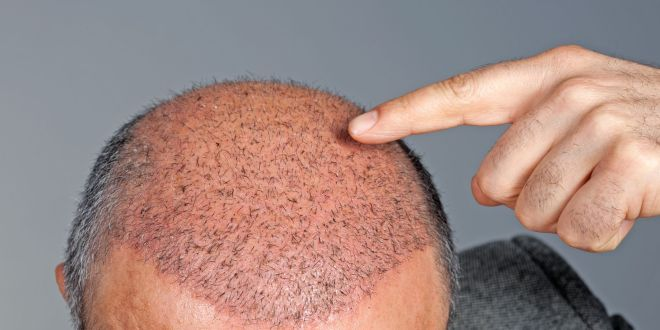 All You Need To Know About Hair Transplantation In Numbers   The Guardian Nigeria News - Nigeria and World News