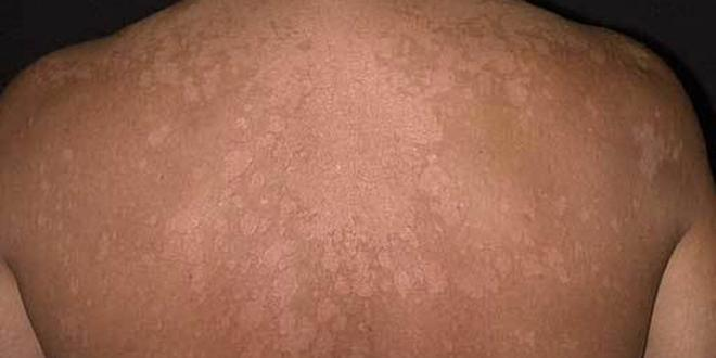 Ringworm: Here are the possible causes and home remedies for this skin infection
