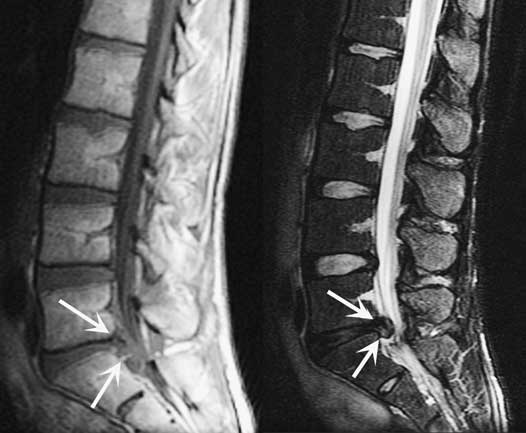 idea for an invention to fix/cure herniated discs