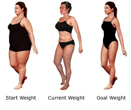 Weight Loss Surgery Safe For Very Obese Teens Study Says Mom Gadget
