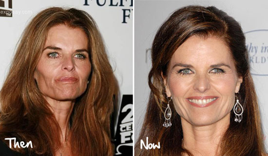 Maria Shriver Facelift Before And After Photos Top Piercings