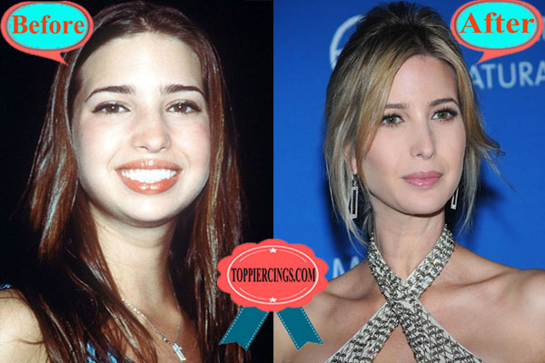 Ivanka-Trump-Nose-Job-Before-and-After-Pictures.jpg