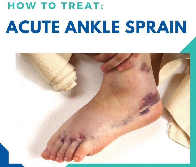 How To Treat Acute Ankle Sprain