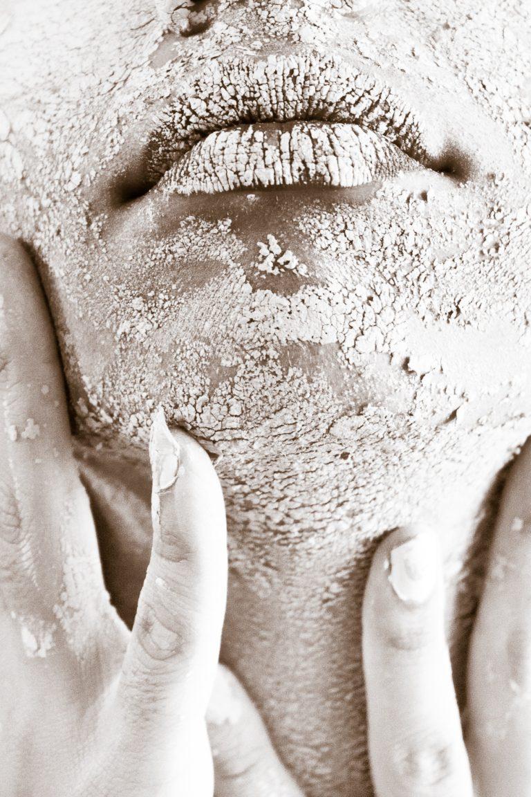6ccb246a Det kan komme i forbindelse med anden sygdom, og du kan derfor opleve at  have hævede mandler, ondt i halsen og halsbetændelse uden feber eller andre  gener.