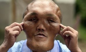 Mandatory Credit: Photo by Imaginechina/REX/Shutterstock (6034892i) Chinese villager Xia Yuanhai who has an alien-like deformed face Man has 'alien face', Changling town, Chongqing, China - 23 Sep 2016 A Chinese man was known to every one in his village because he has a big head and an alien-like deformed face. Xia Yuanhai, 53, lives in Laotu village in southwestern Chinese municipality of Chongqing. His apperance was normal when he was a teenager. But later hyperplasia was growing on his face and head, according to his 66-year-old brother Xia Yuanchang. As the growth of hyperplasia was very slow and his family was poor, Xia Yuanhai did not get enough attention from his parents and did not receive medical treatment. Many years later, the hyperplasia deformed Xia's face, crushing his teeth and nearly disabling his hearing. Now his brother hoped that some one can fund plastic surgeries to help his younger brother to get back his normal face.