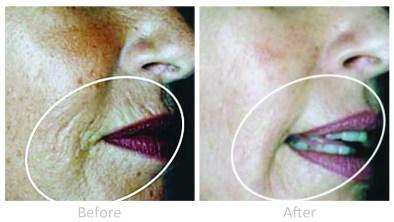 Dermaroller treatment for collagen growth: