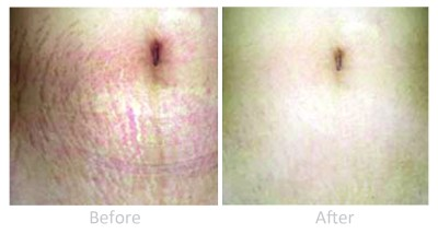 Dermaroller treatment for stretch marks: