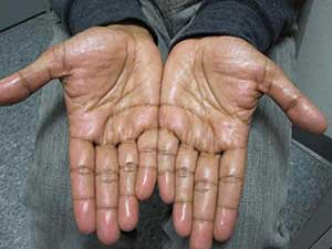 Dr. Barankin publishes case of excessive palm sweating