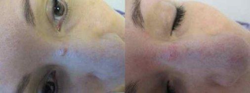 Mole Treatment Toronto   Specializing in Mole Removal