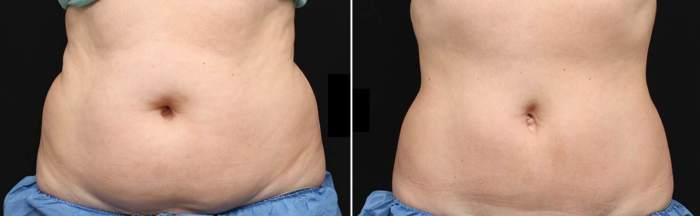 CoolSculpting BEFORE & AFTER photo of belly area