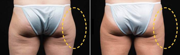 CoolSculpting TREATMENT OF THE HIP (SINGLE SIDE TREATMENT)