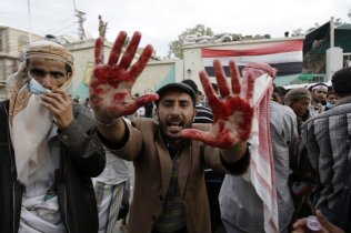 An anti-government protester holds out his blood-stained hands after clashes with security forces, in Sanaa, Yemen, Sunday, Sept. 18, 2011.