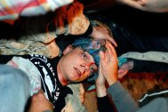 Tuesday, Oct. 25, 2011, 24-year-old Iraq War veteran Scott Olsen lays on the ground bleeding from a head wound after being struck by a by a projectile during an Occupy Wall Street