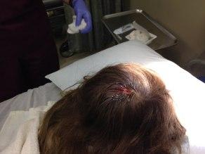 Tegan's head gash