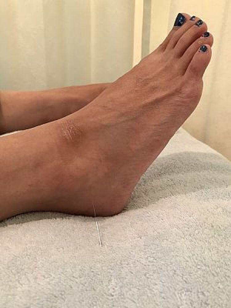 足太陽膀胱経の申脈のツボの写真